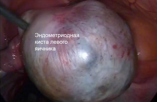 огромная эндометриоидная киста