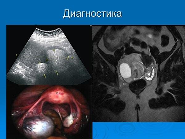 диагностика цистаденомы