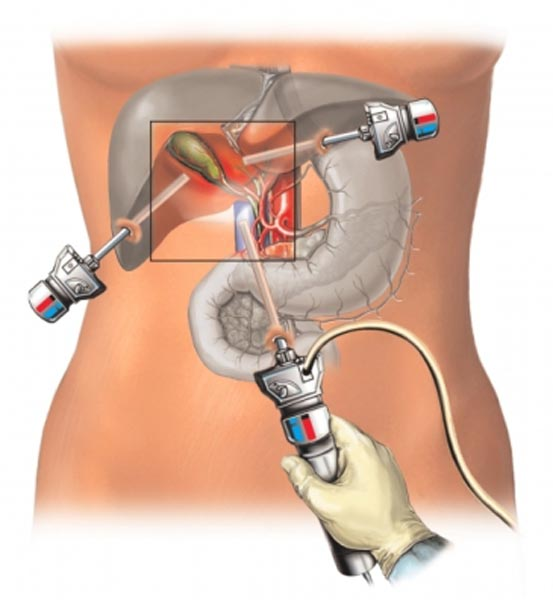 лапароскопия кисты печени