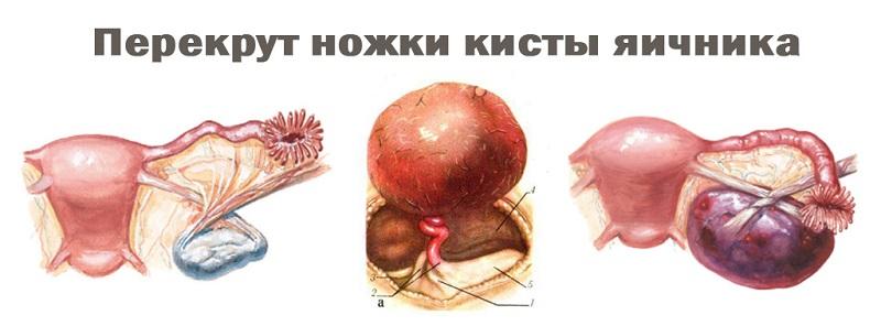 перекрут кисты яичника