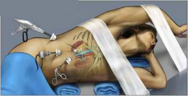 лапароскопия киста почки