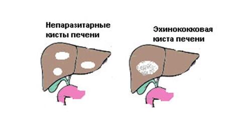 паразитарные и непаразитарные кисты печени