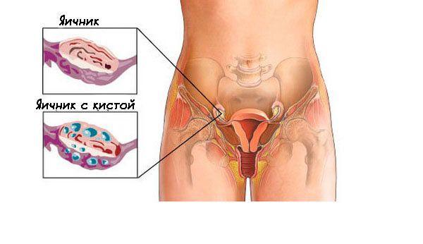 Киста на яичнике лечение в домашних условиях 99