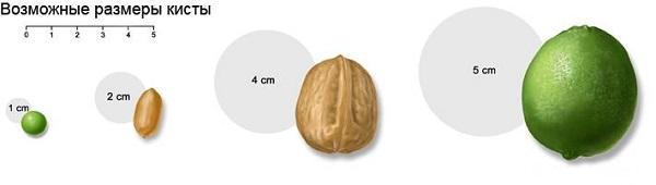 размеры кисты яичка у ребенка