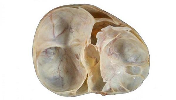 муцинозная цистаденома яичников
