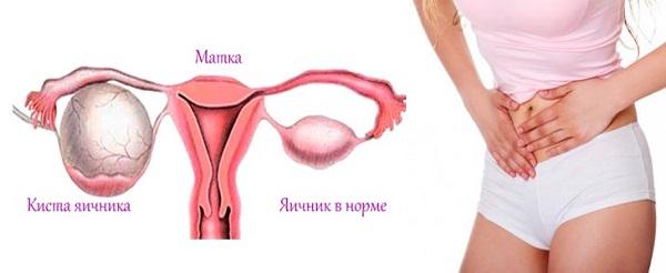 симптомы геморрагической кисты яичника