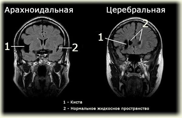 арахноидальная киста мозга