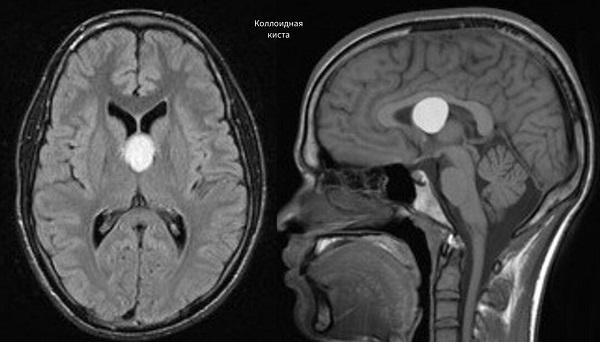 коллоидная киста головного мозга