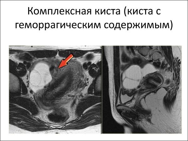 геморрагическая киста на УЗИ
