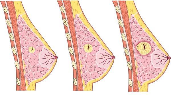фиброзная киста у женщин