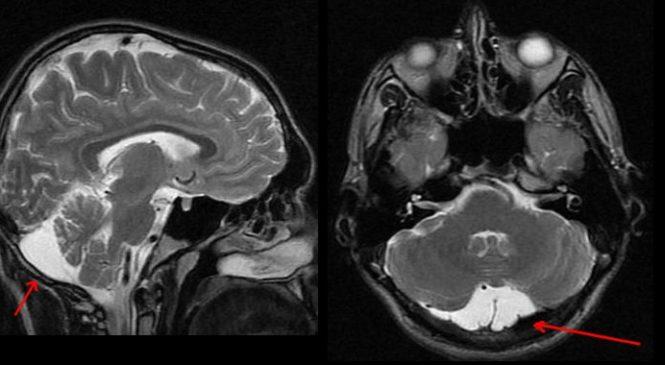 Киста мозга — что это такое