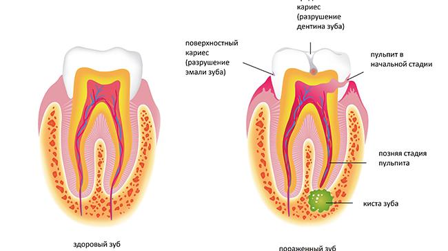 Киста зуба: что это такое и как лечить