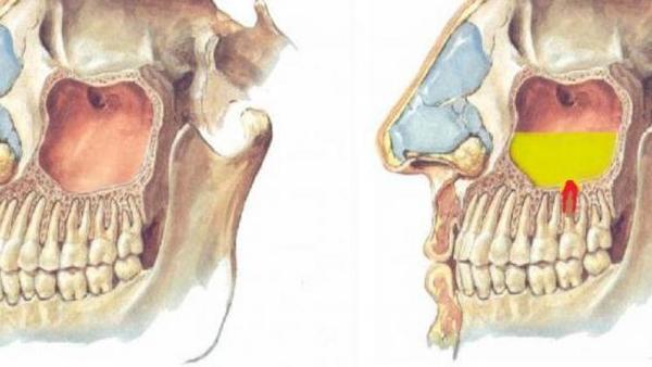 Верхнечелюстная киста — причины ее возникновения, медикаментозное лечение и оперативное вмешательство