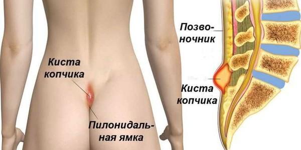 Почему киста на копчике чаще диагностируется у мужчин