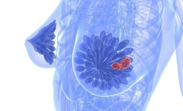 Распространенные причины, медикаментозное и хирургическое лечение кисты молочной железы